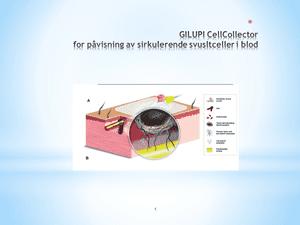 cellcollector: ny metode for å påvise svulstceller hos menn med prostatakreft