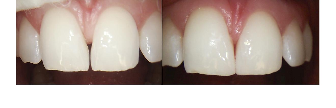 Före och efterbilder på tänder behandlade för Diastema