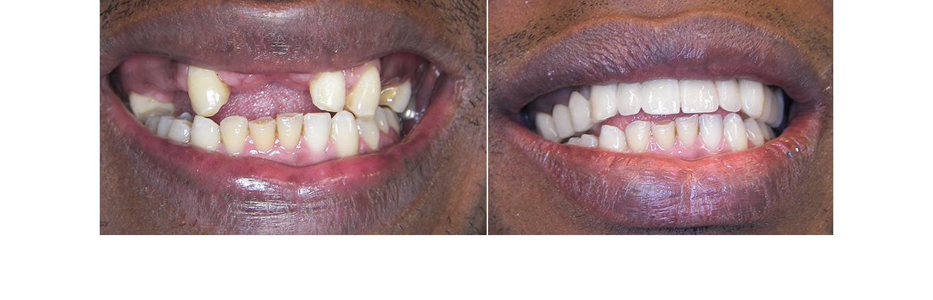 Före och efterbilder på förlorade tänder
